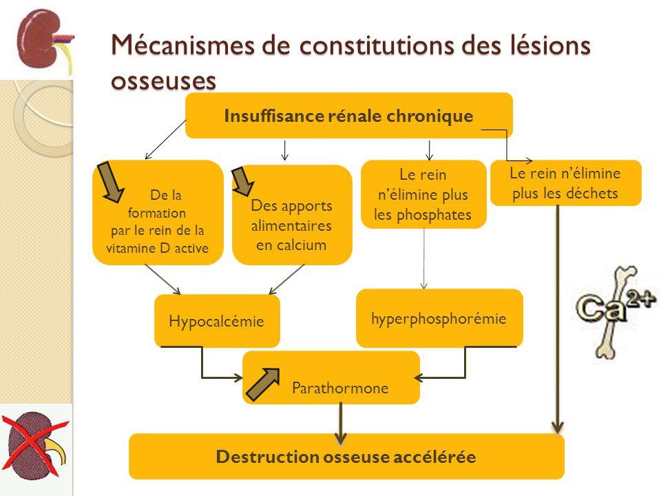 Mécanismes de constitutions des lésions osseuses Insuffisance rénale chronique De la formation par le rein de la vitamine D active Des apports aliment
