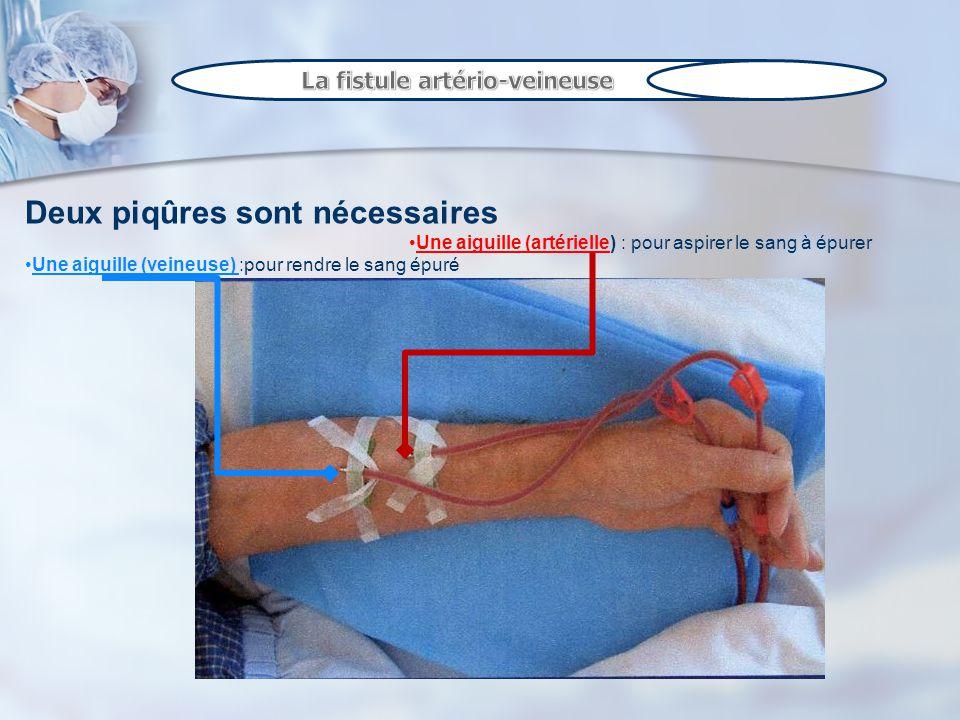 Deux piqûres sont nécessaires Une aiguille (artérielle) : pour aspirer le sang à épurer Une aiguille (veineuse) :pour rendre le sang épuré
