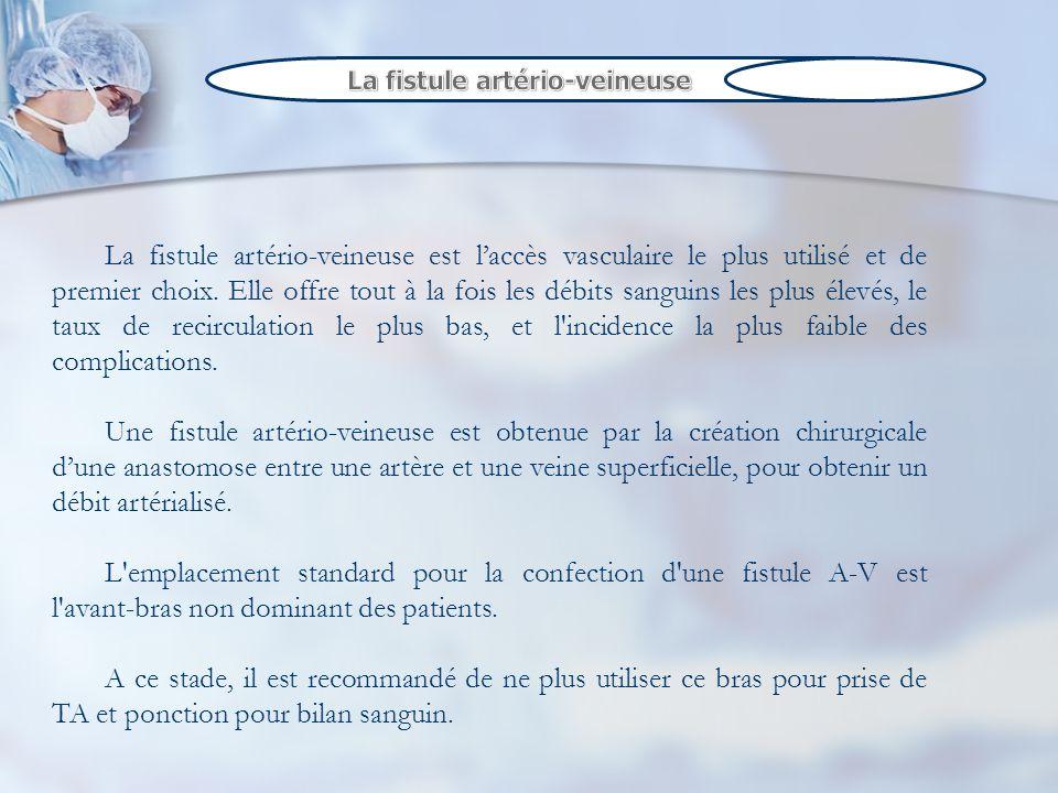 La fistule artério-veineuse est laccès vasculaire le plus utilisé et de premier choix. Elle offre tout à la fois les débits sanguins les plus élevés,