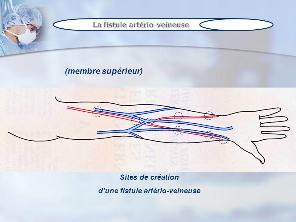 (membre supérieur) Sites de création dune fistule artério-veineuse