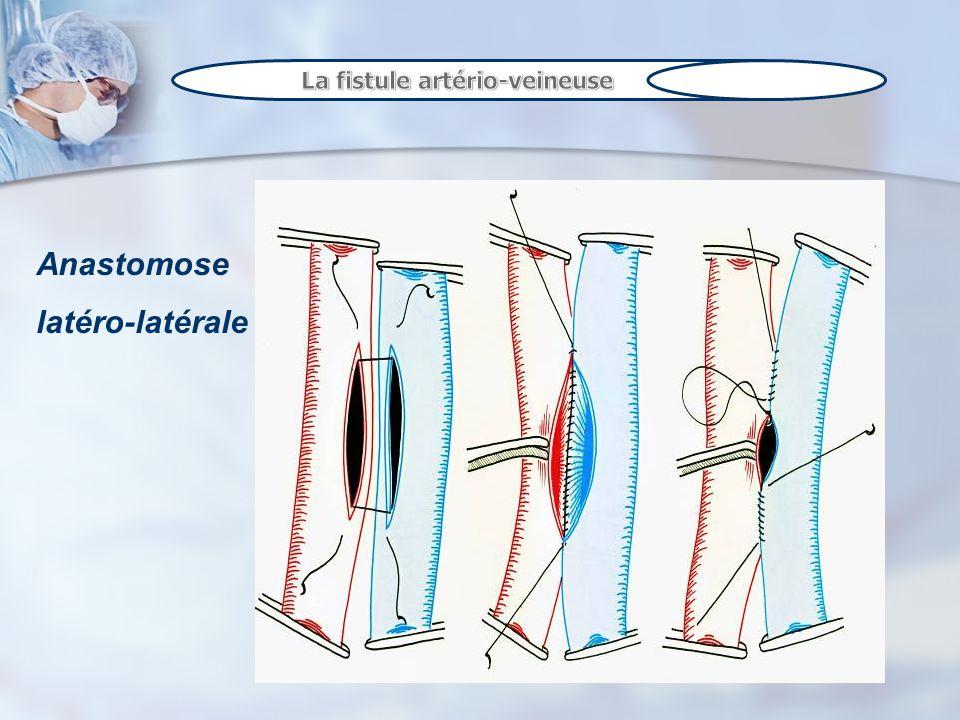 Zone de ponction anastomose Thrill