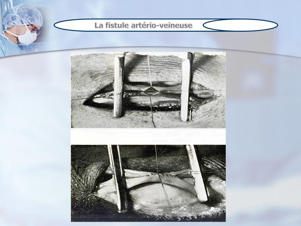 Les cathéters veineux centraux sont utilisés dès lors que les autres techniques ne sont plus utilisables ou avant la réalisation dune FAV.