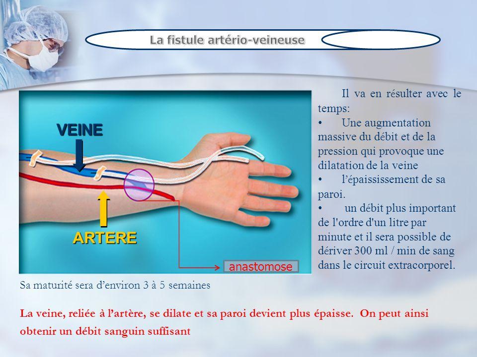 Examen clinique, une fistule sexamine : Visuellement en terme de cicatrisation et dinfection.