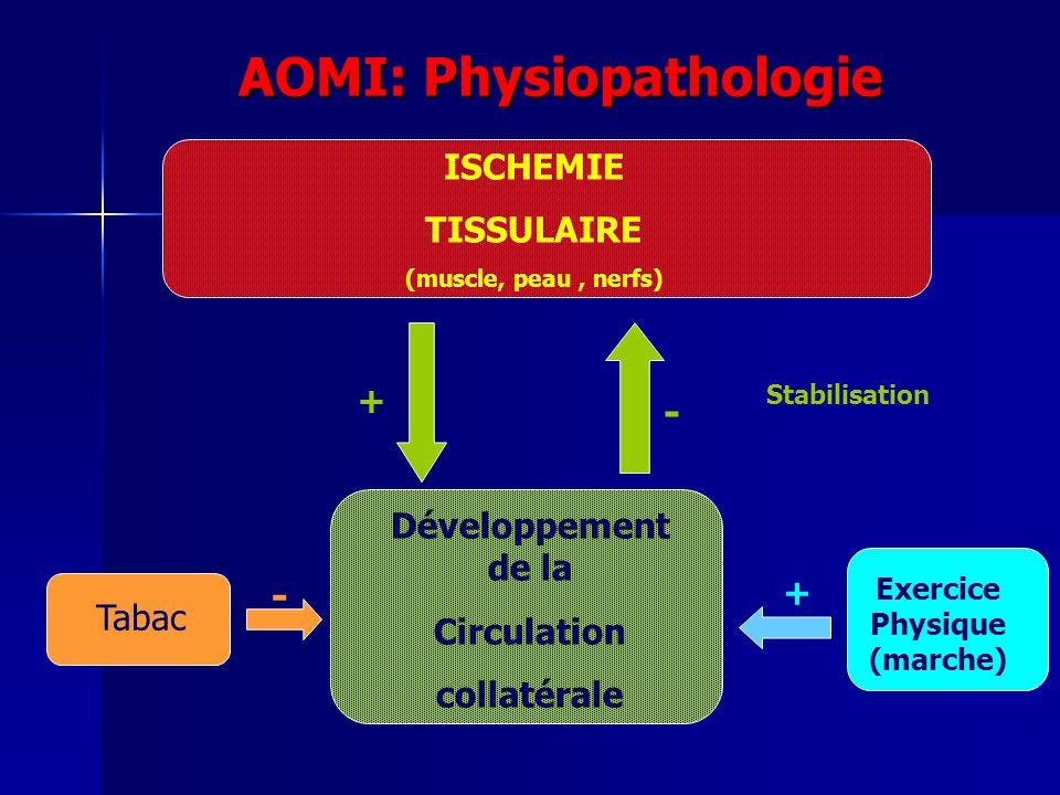 AOMI: Physiopathologie ISCHEMIE TISSULAIRE (muscle, peau, nerfs) Développement de la Circulation collatérale + - Tabac - Stabilisation Exercice Physiq