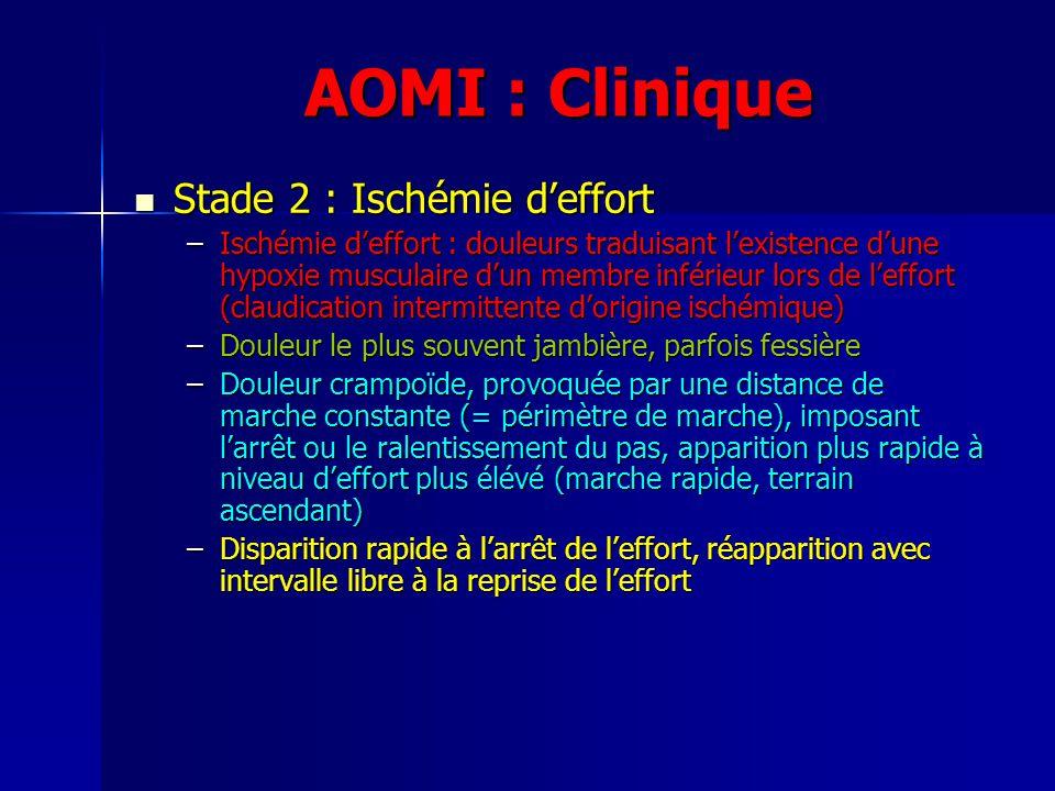 AOMI : Clinique Stade 2 : Ischémie deffort Stade 2 : Ischémie deffort –Ischémie deffort : douleurs traduisant lexistence dune hypoxie musculaire dun m