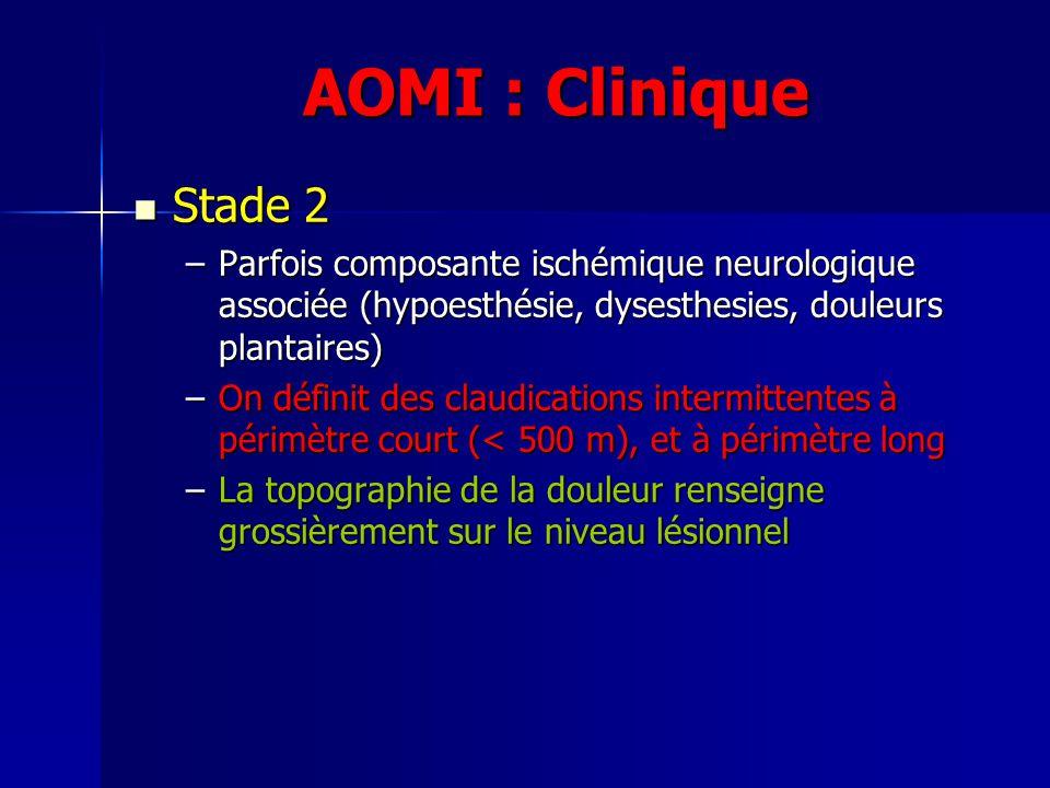 AOMI : Clinique Stade 2 Stade 2 –Parfois composante ischémique neurologique associée (hypoesthésie, dysesthesies, douleurs plantaires) –On définit des
