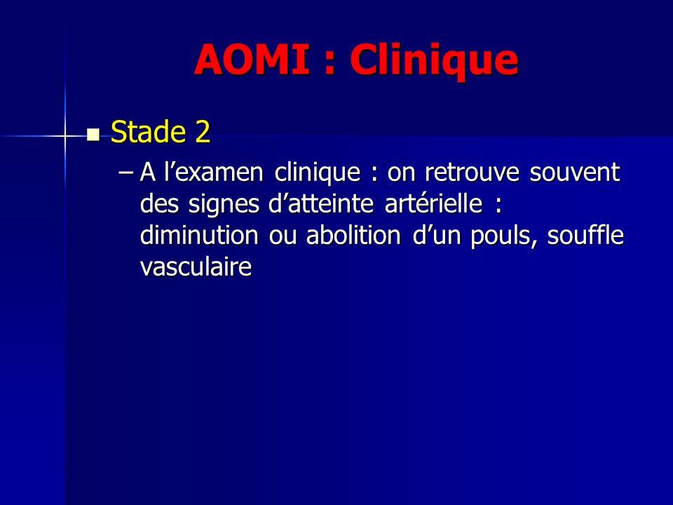 AOMI : Clinique Stade 2 Stade 2 –A lexamen clinique : on retrouve souvent des signes datteinte artérielle : diminution ou abolition dun pouls, souffle