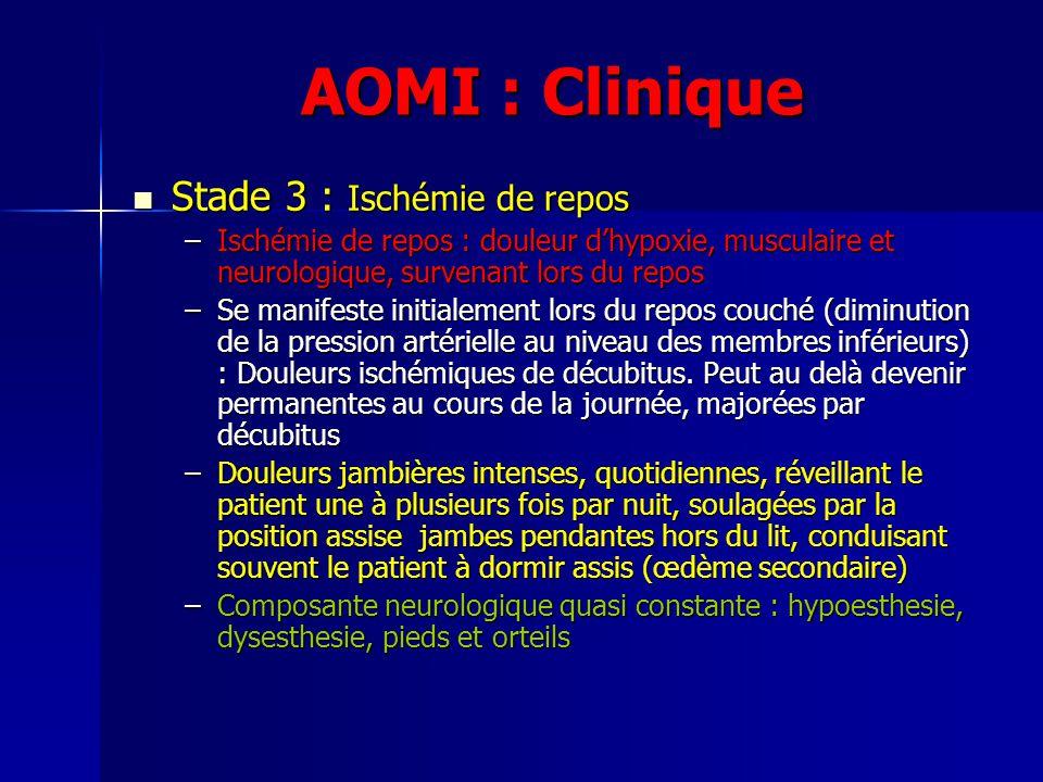 AOMI : Clinique Stade 3 : Ischémie de repos Stade 3 : Ischémie de repos –Ischémie de repos : douleur dhypoxie, musculaire et neurologique, survenant l