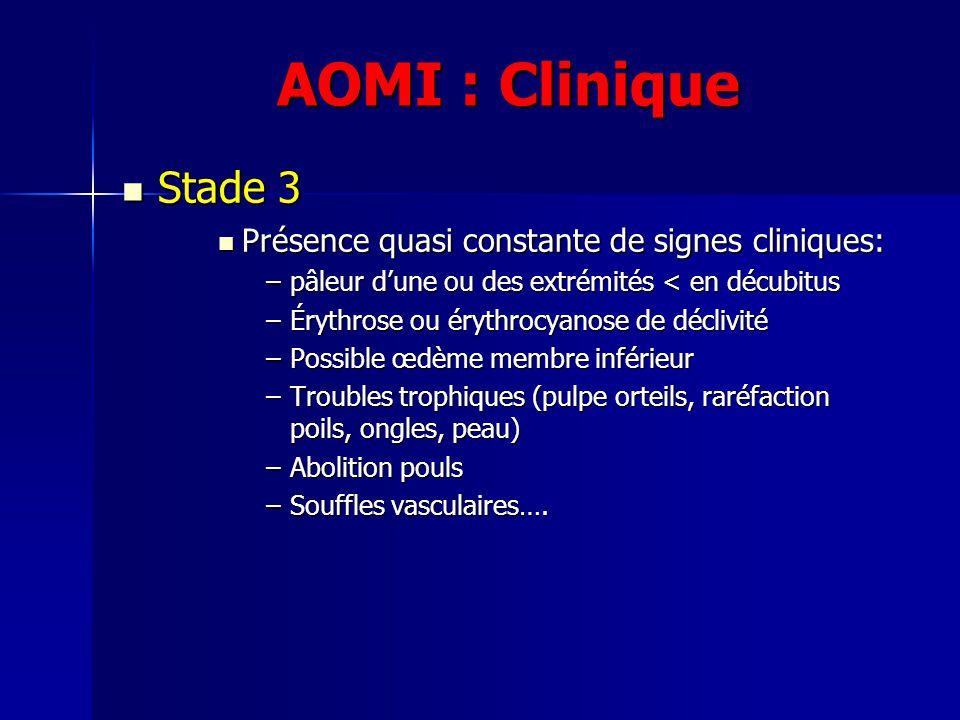 AOMI : Clinique Stade 3 Stade 3 Présence quasi constante de signes cliniques: Présence quasi constante de signes cliniques: –pâleur dune ou des extrém