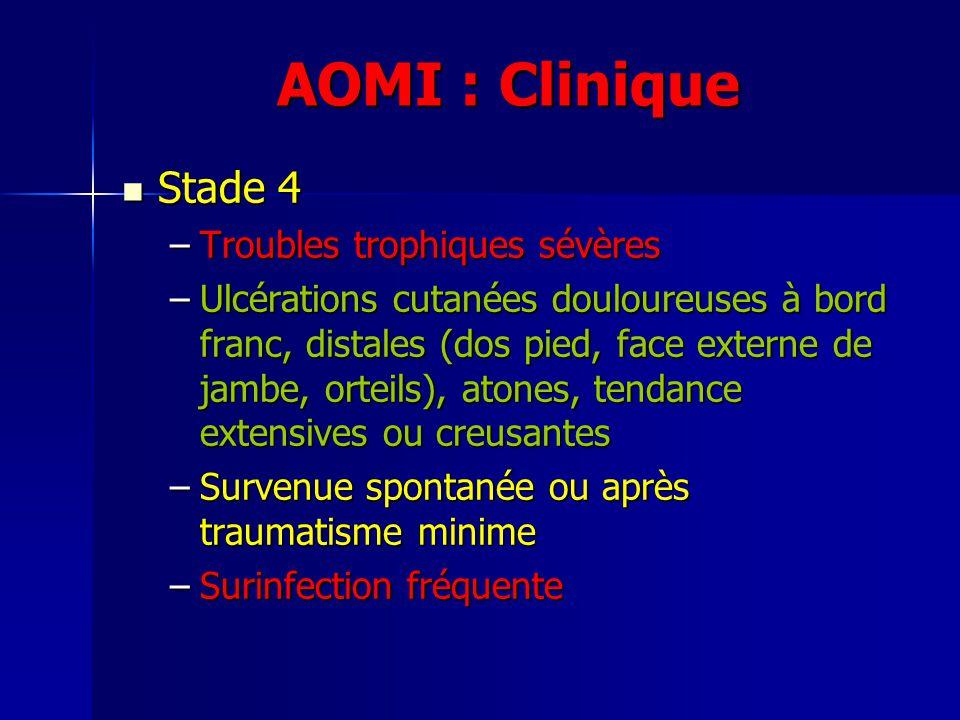 AOMI : Clinique Stade 4 Stade 4 –Troubles trophiques sévères –Ulcérations cutanées douloureuses à bord franc, distales (dos pied, face externe de jamb
