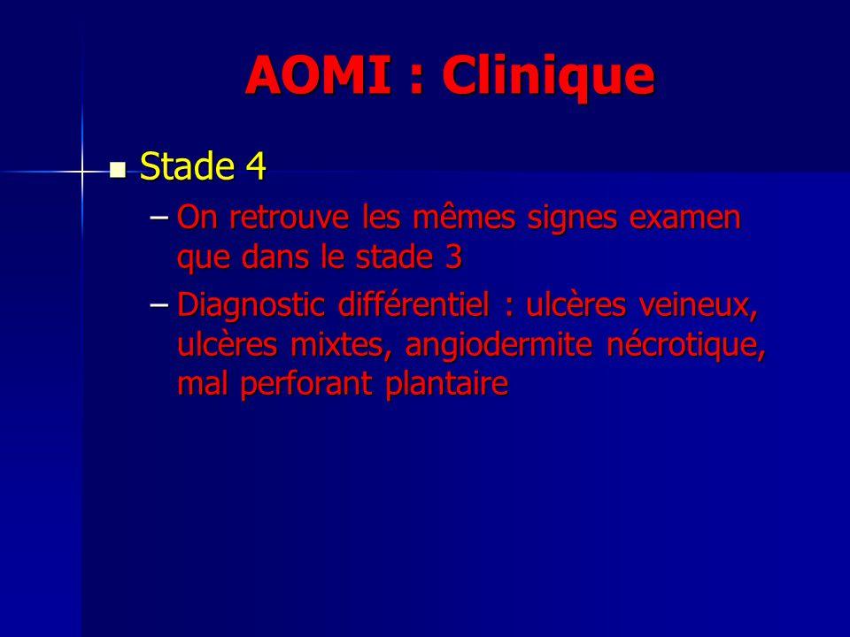 AOMI : Clinique Stade 4 Stade 4 –On retrouve les mêmes signes examen que dans le stade 3 –Diagnostic différentiel : ulcères veineux, ulcères mixtes, a