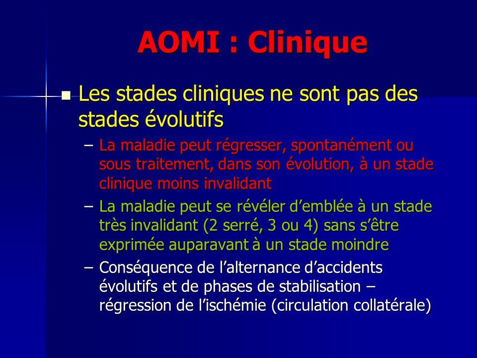 AOMI : Clinique Les stades cliniques ne sont pas des stades évolutifs Les stades cliniques ne sont pas des stades évolutifs –La maladie peut régresser