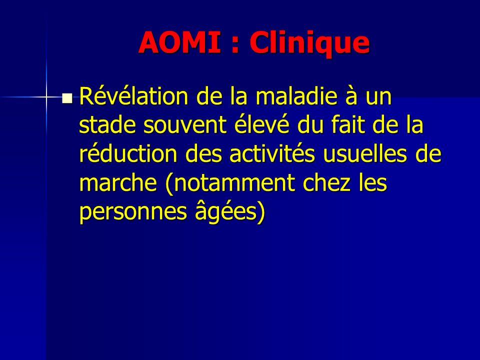 AOMI : Clinique Révélation de la maladie à un stade souvent élevé du fait de la réduction des activités usuelles de marche (notamment chez les personn