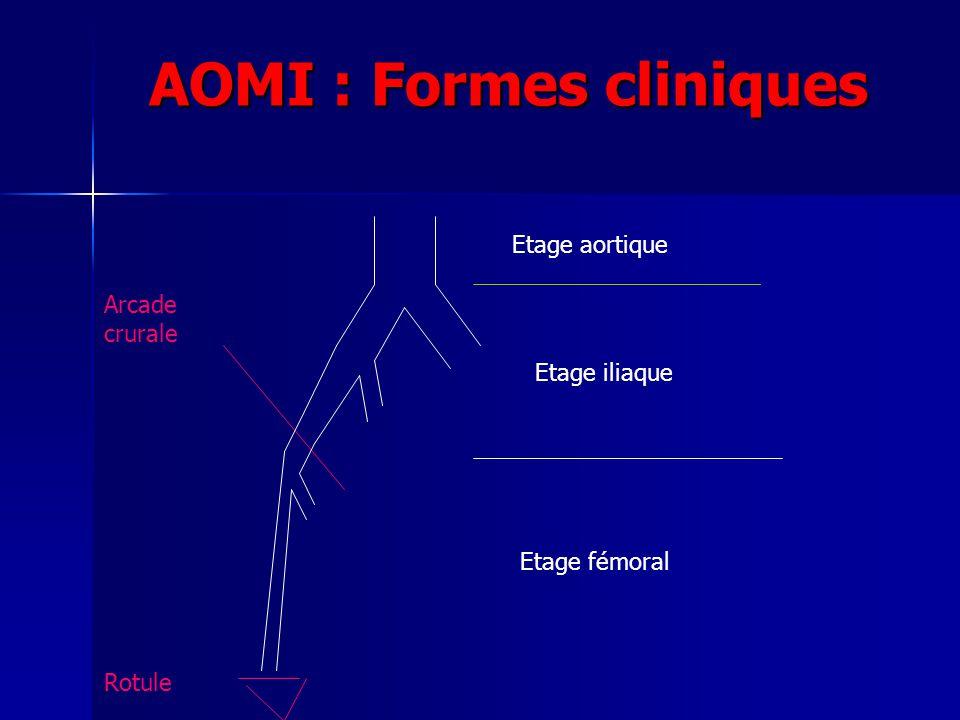 AOMI : Formes cliniques Etage aortique Arcade crurale Etage iliaque Rotule Etage fémoral