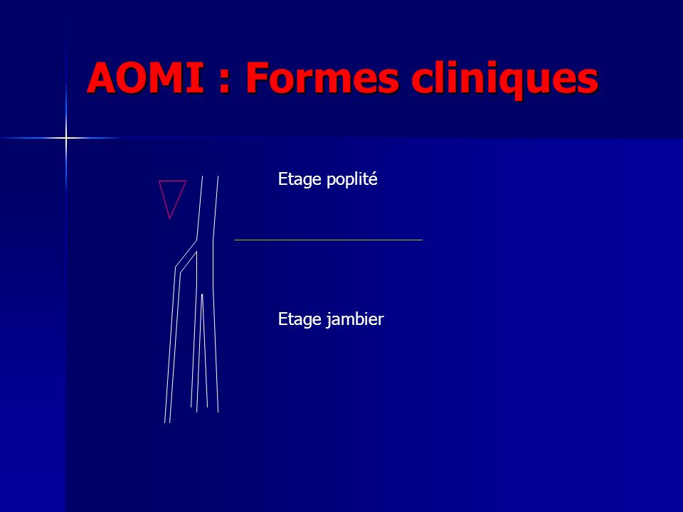 AOMI : Formes cliniques Etage poplité Etage jambier