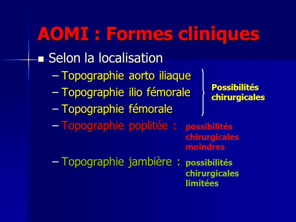 AOMI : Formes cliniques Selon la localisation Selon la localisation –Topographie aorto iliaque –Topographie ilio fémorale –Topographie fémorale –Topog