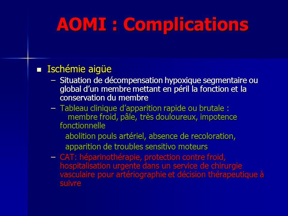 AOMI : Complications Ischémie aigüe Ischémie aigüe –Situation de décompensation hypoxique segmentaire ou global dun membre mettant en péril la fonctio