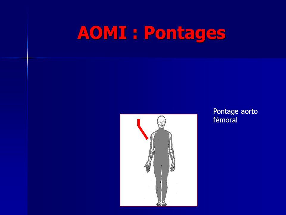 AOMI : Pontages Pontage aorto fémoral