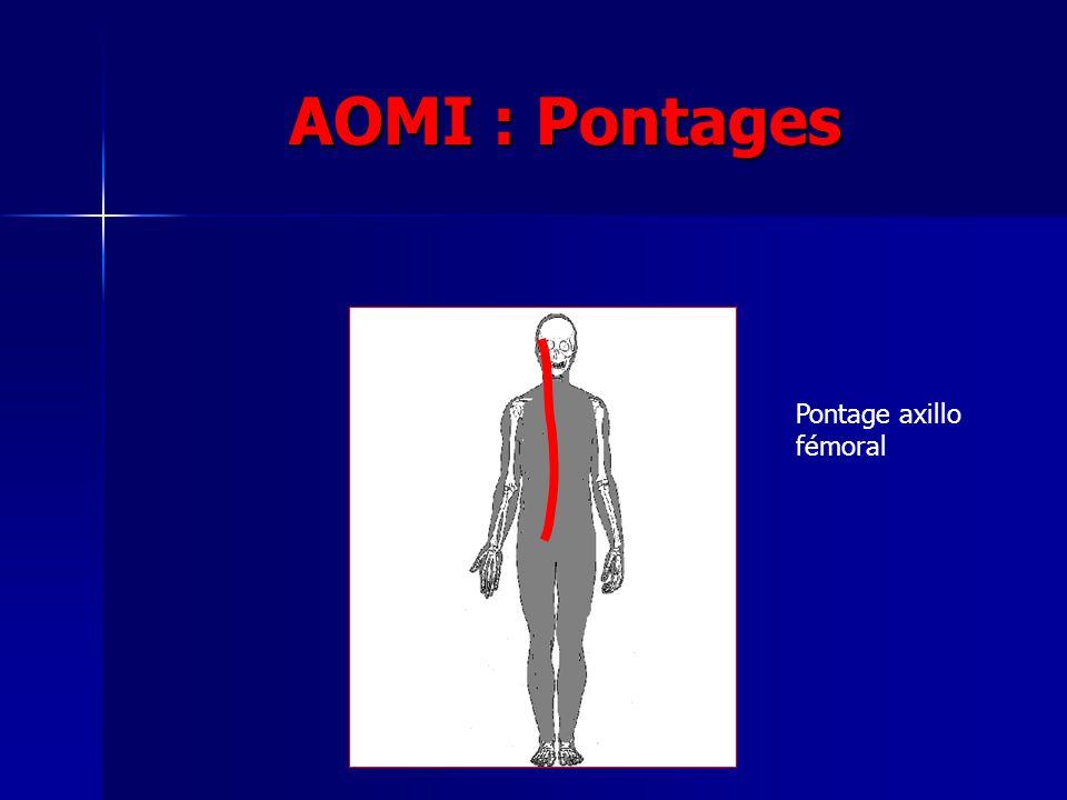 AOMI : Pontages Pontage axillo fémoral