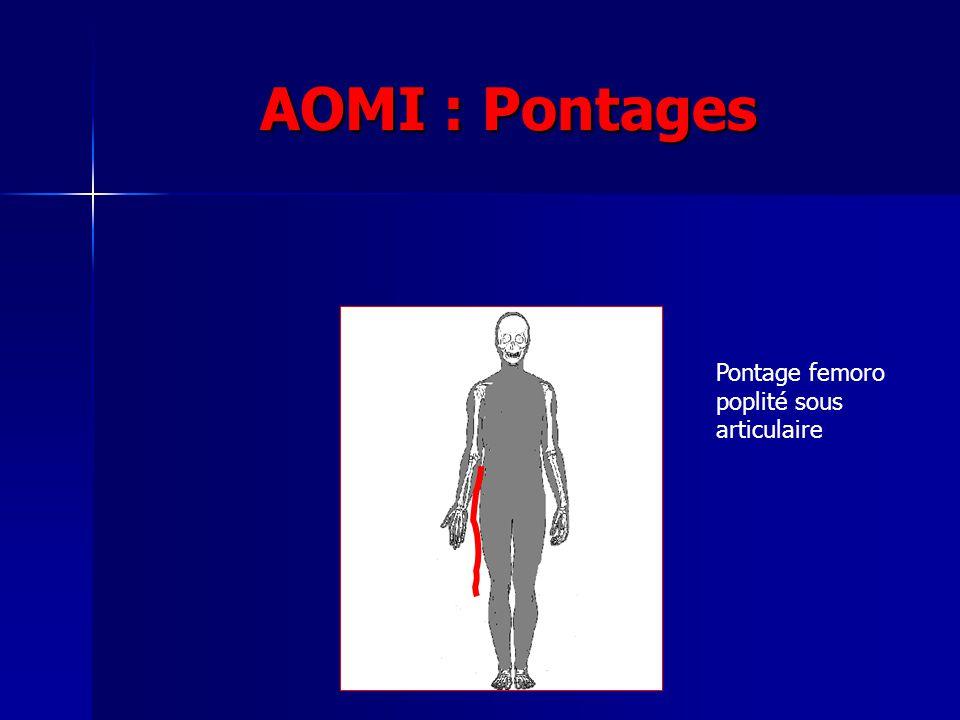 AOMI : Pontages Pontage femoro poplité sous articulaire