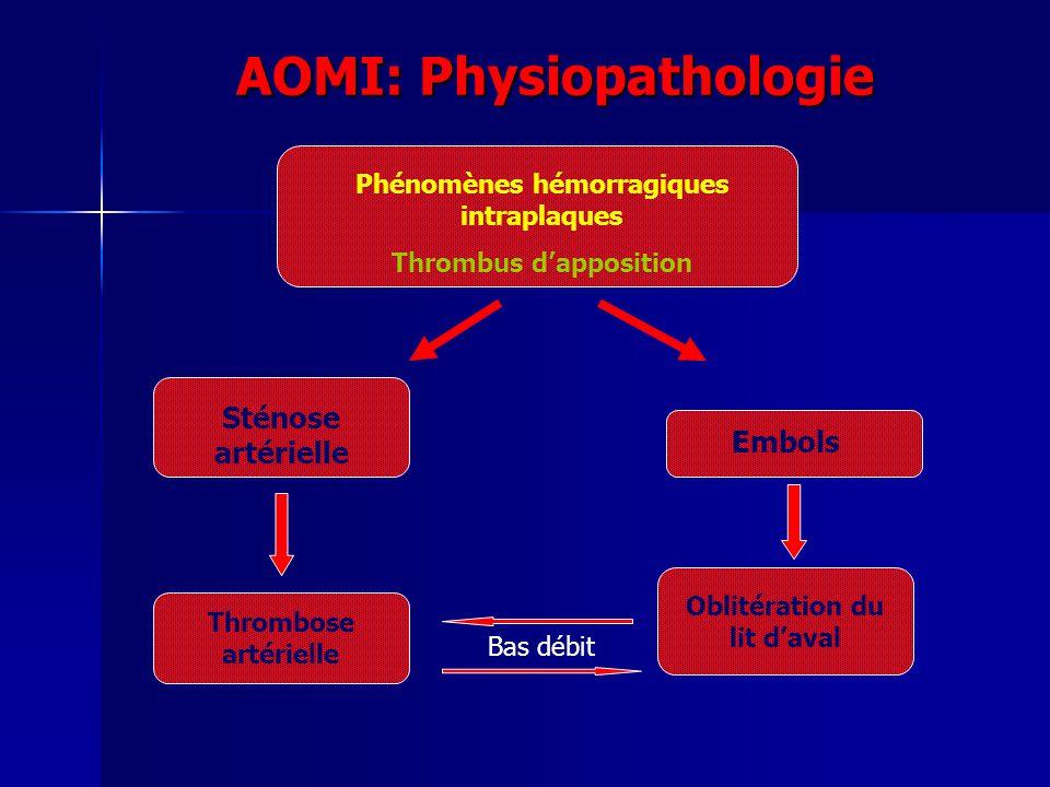 AOMI: Physiopathologie Phénomènes hémorragiques intraplaques Thrombus dapposition Sténose artérielle Embols Thrombose artérielle Oblitération du lit d