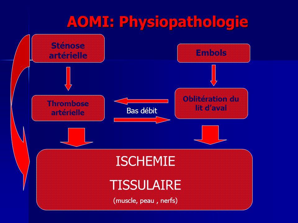 AOMI: Physiopathologie Sténose artérielle Embols Thrombose artérielle Oblitération du lit daval Bas débit ISCHEMIE TISSULAIRE (muscle, peau, nerfs)