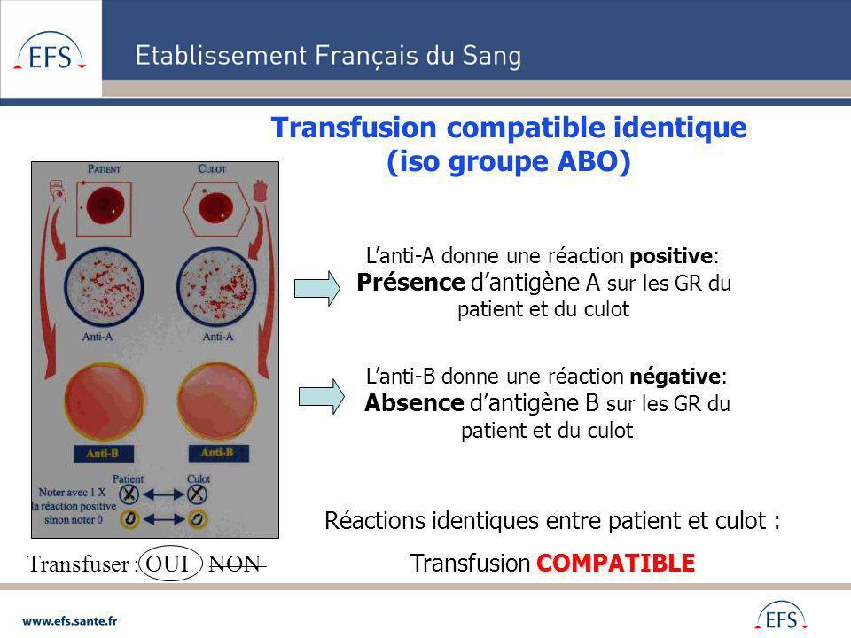 Transfusion compatible identique (iso groupe ABO) Lanti-A donne une réaction positive: Présence dantigène A sur les GR du patient et du culot Lanti-B