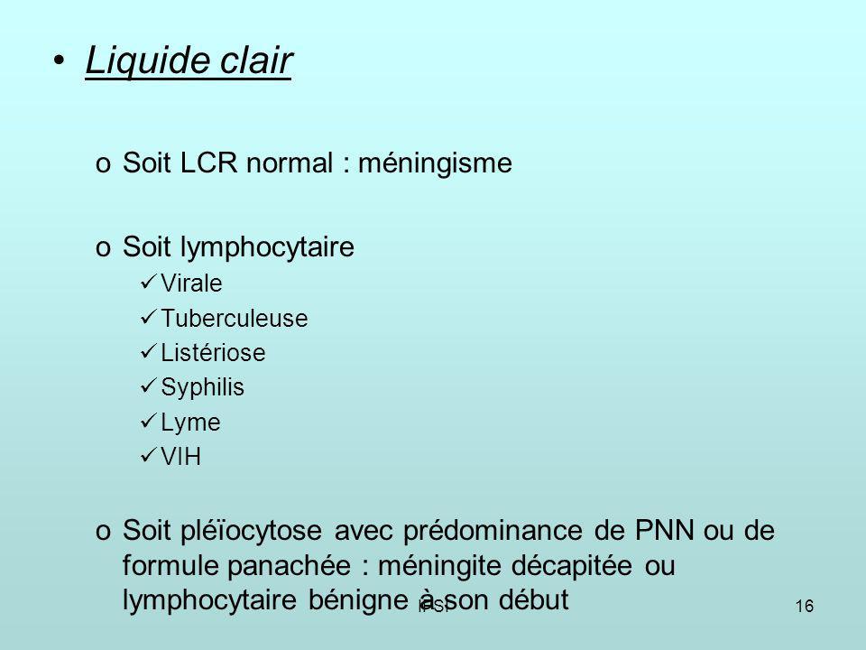 IFSI16 Liquide clair oSoit LCR normal : méningisme oSoit lymphocytaire Virale Tuberculeuse Listériose Syphilis Lyme VIH oSoit pléïocytose avec prédominance de PNN ou de formule panachée : méningite décapitée ou lymphocytaire bénigne à son début