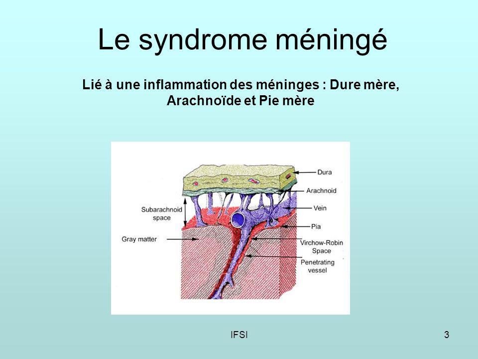 IFSI3 Le syndrome méningé Lié à une inflammation des méninges : Dure mère, Arachnoïde et Pie mère