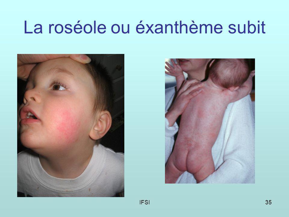 IFSI35 La roséole ou éxanthème subit