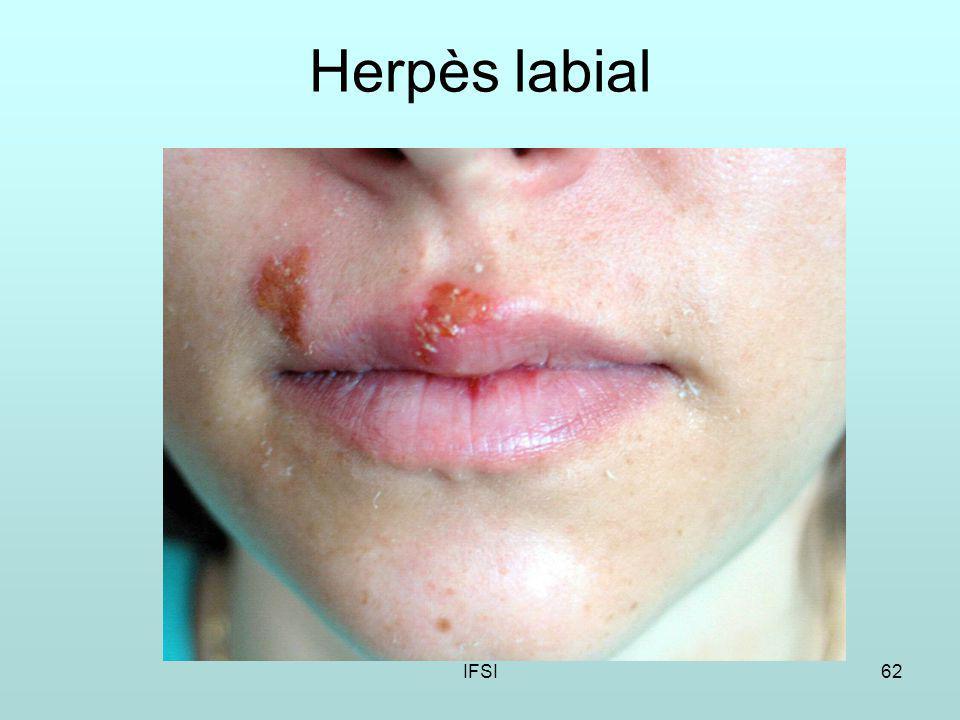 IFSI62 Herpès labial
