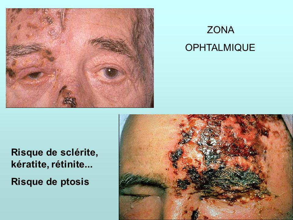 IFSI69 ZONA OPHTALMIQUE Risque de sclérite, kératite, rétinite... Risque de ptosis