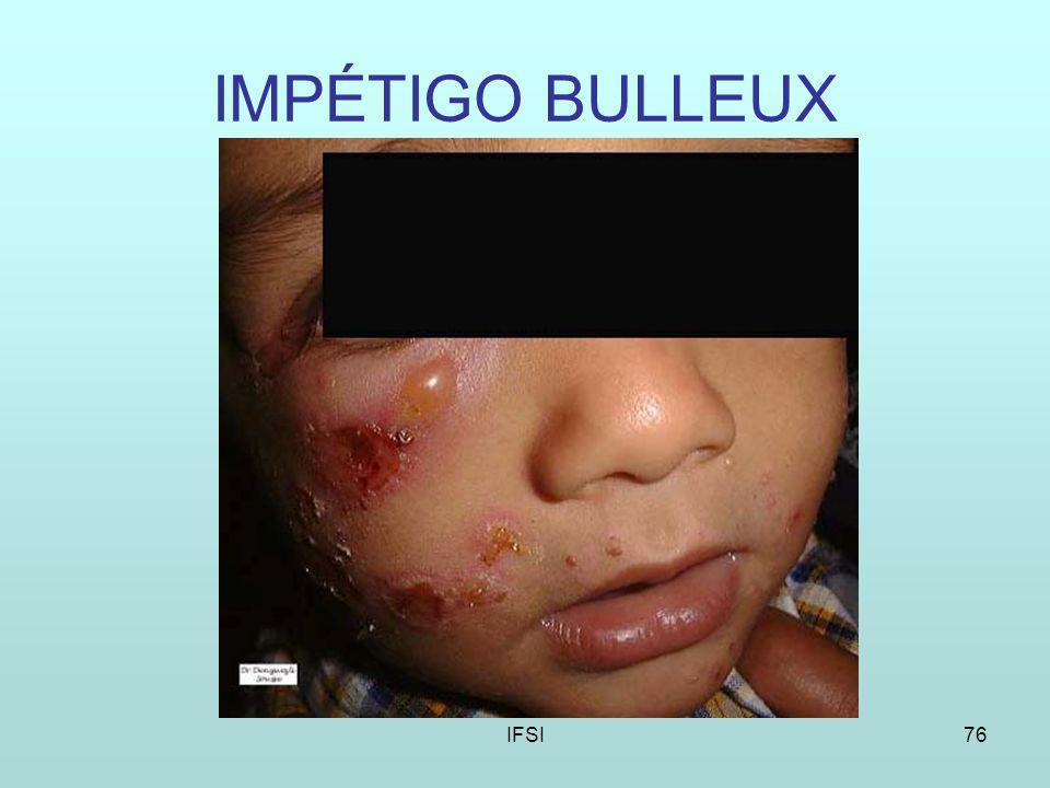 IFSI76 IMPÉTIGO BULLEUX