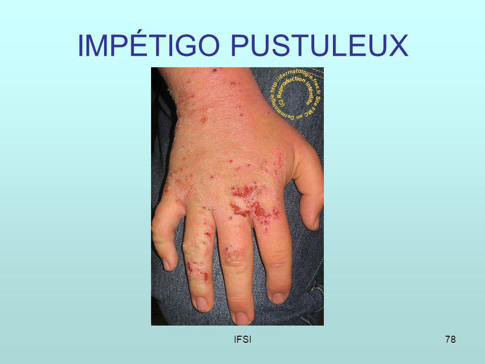 IFSI78 IMPÉTIGO PUSTULEUX