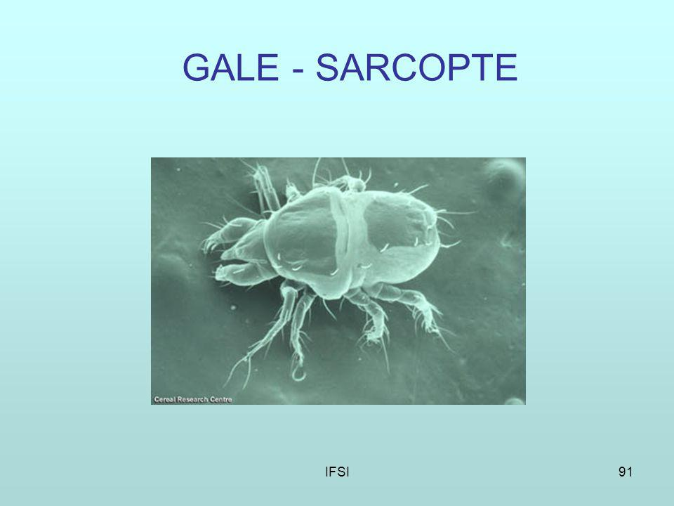 IFSI91 GALE - SARCOPTE