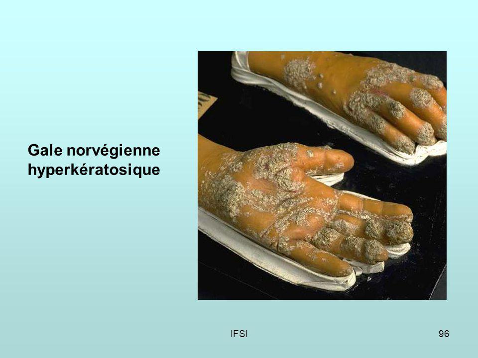 IFSI96 Gale norvégienne hyperkératosique