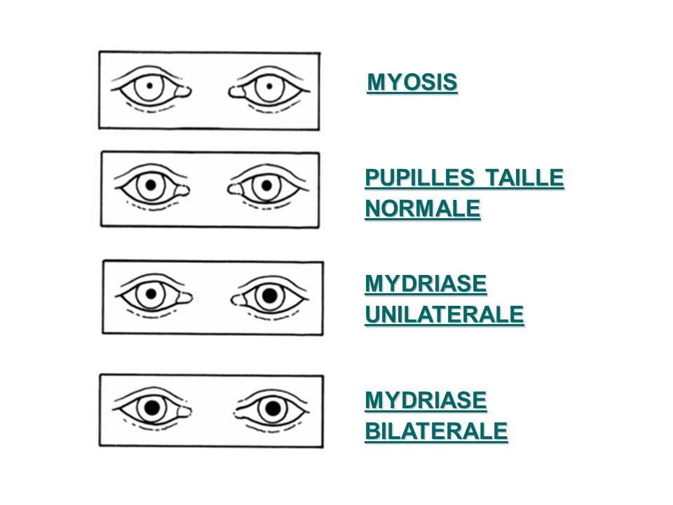 MYOSIS MYOSIS PUPILLES TAILLE NORMALE MYDRIASEUNILATERALE MYDRIASEBILATERALE