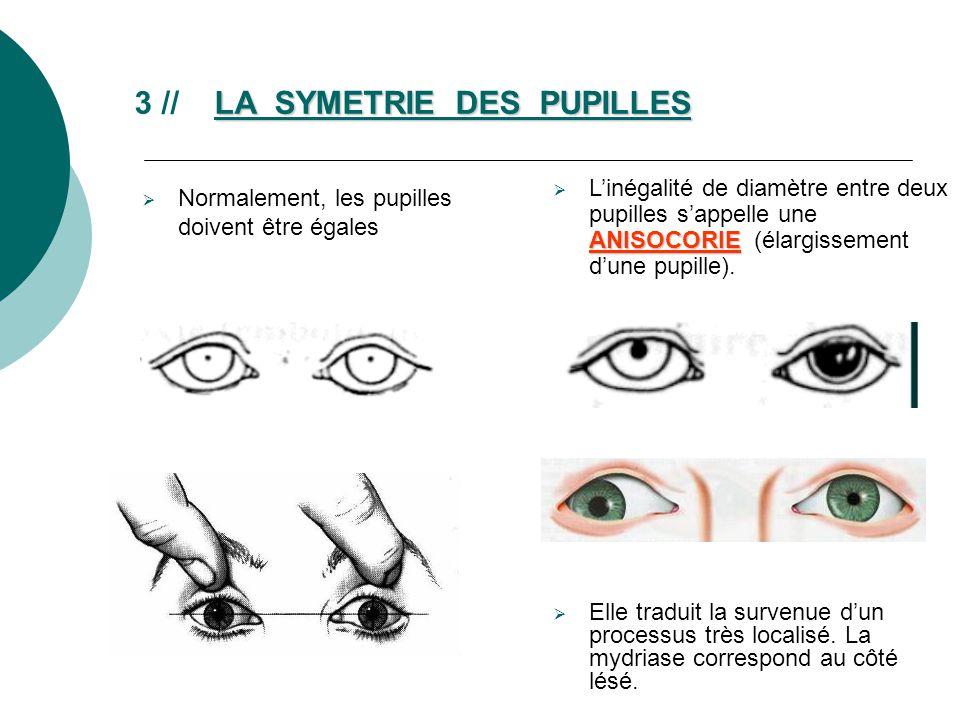 LA SYMETRIE DES PUPILLES 3 // LA SYMETRIE DES PUPILLES Normalement, les pupilles doivent être égales ANISOCORIE Linégalité de diamètre entre deux pupi
