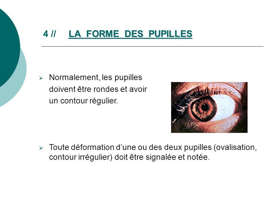 LA FORME DES PUPILLES 4 // LA FORME DES PUPILLES Normalement, les pupilles doivent être rondes et avoir un contour régulier. Toute déformation dune ou