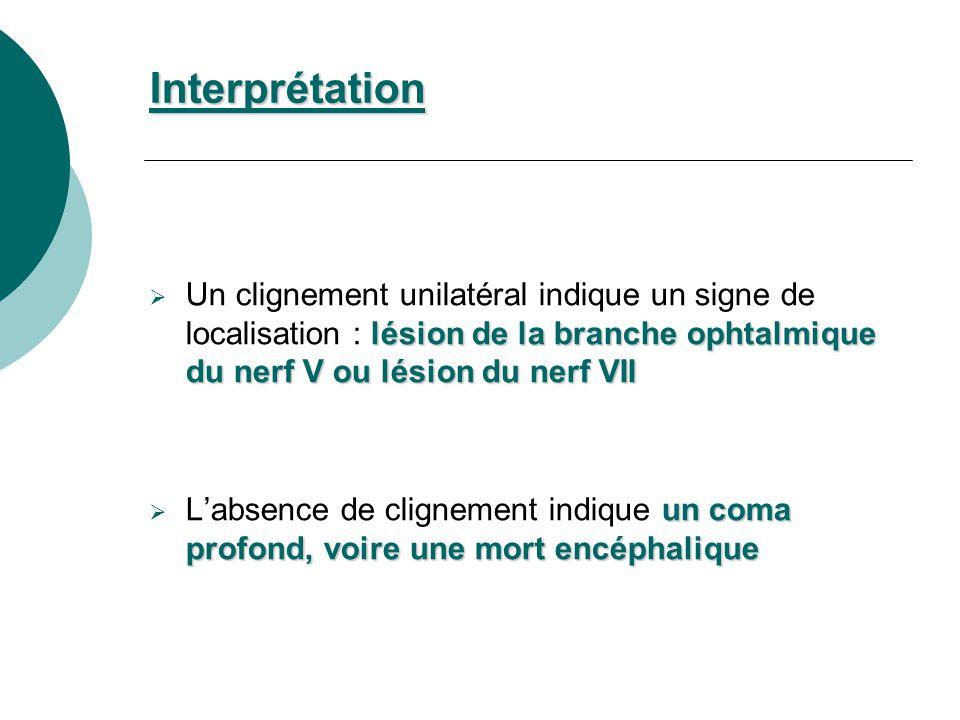 lésion de la branche ophtalmique du nerf V ou lésion du nerf VII Un clignement unilatéral indique un signe de localisation : lésion de la branche opht