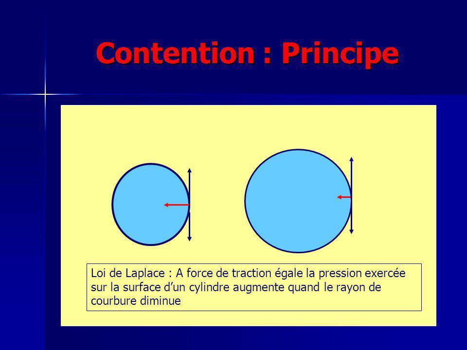 Contention : Principe Zone de compression nulle Loi de Laplace : A force de traction égale la pression exercée sur la surface dun cylindre augmente quand le rayon de courbure diminue