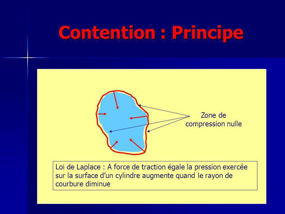 Contention : Principe Zone de compression nulle Loi de Laplace : A force de traction égale la pression exercée sur la surface dun cylindre augmente qu