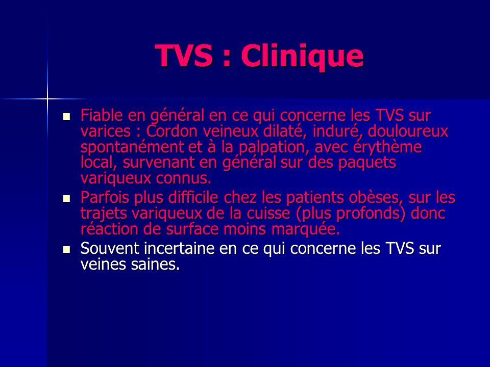 TVS : Clinique Fiable en général en ce qui concerne les TVS sur varices : Cordon veineux dilaté, induré, douloureux spontanément et à la palpation, av