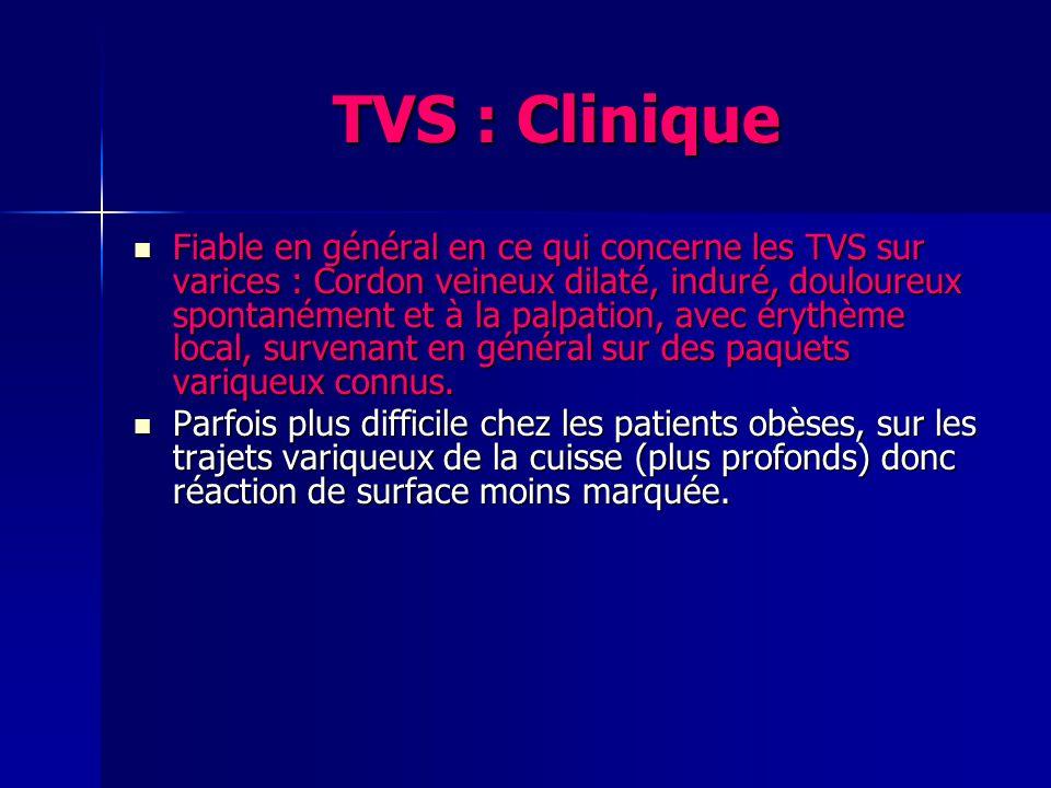 TVS : Clinique Fiable en général en ce qui concerne les TVS sur varices : Cordon veineux dilaté, induré, douloureux spontanément et à la palpation, avec érythème local, survenant en général sur des paquets variqueux connus.