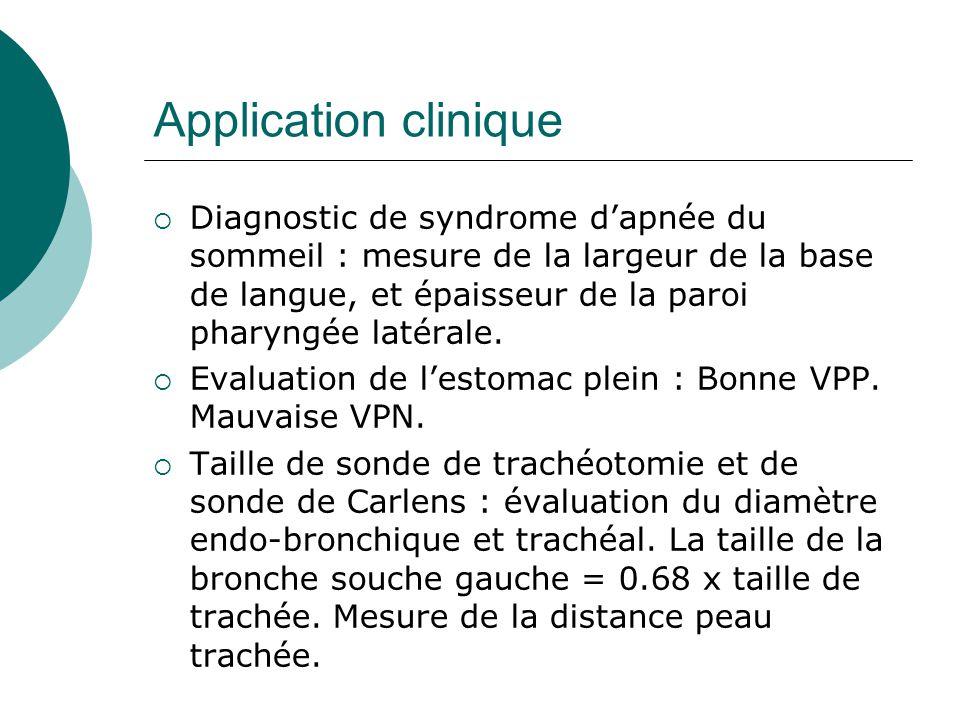 Application clinique Diagnostic de syndrome dapnée du sommeil : mesure de la largeur de la base de langue, et épaisseur de la paroi pharyngée latérale.