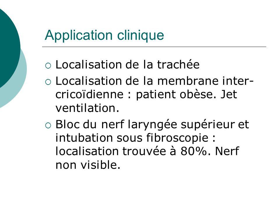 Application clinique Localisation de la trachée Localisation de la membrane inter- cricoïdienne : patient obèse. Jet ventilation. Bloc du nerf laryngé