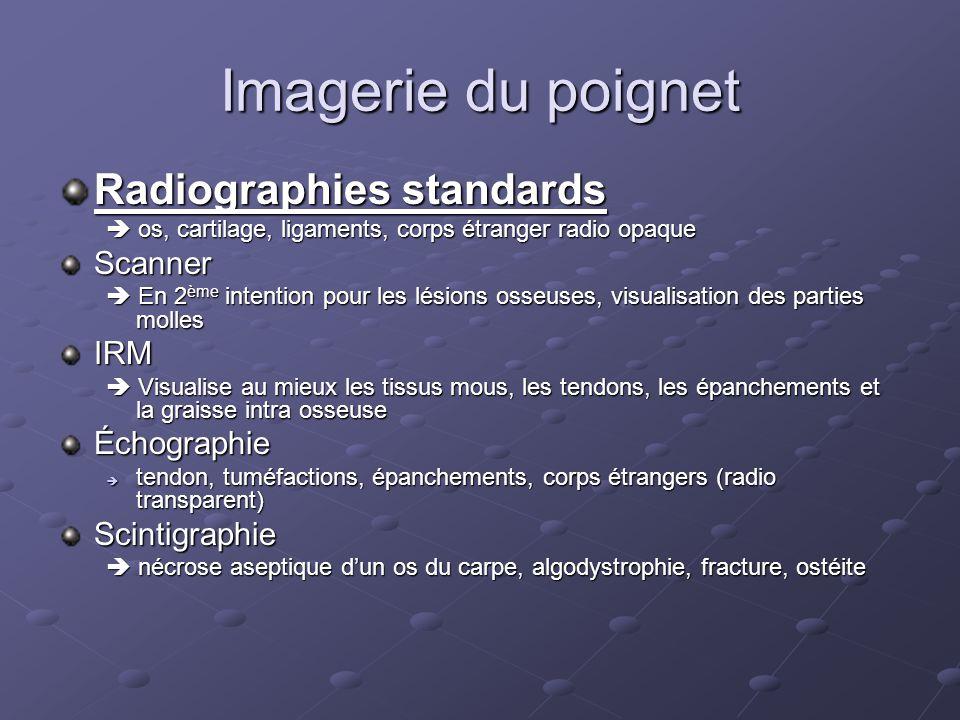 Incidences radiologiques standards FACE PROFIL Dautres incidences peuvent êtres choisies en fonction de la pathologie recherchée.
