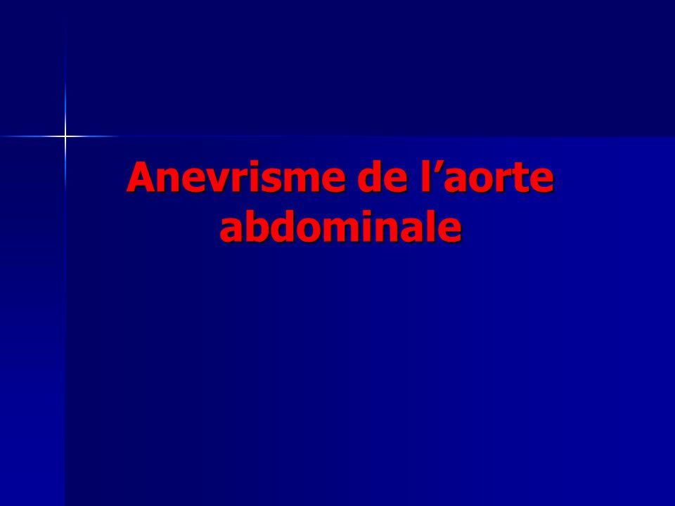 Définition Anévrisme = dilatation permanente localisée ou segmentaire dune artère (avec perte de parallélisme des bords), dont le diamètre est augmenté dau moins 50 % par rapport à son diamètre normal.
