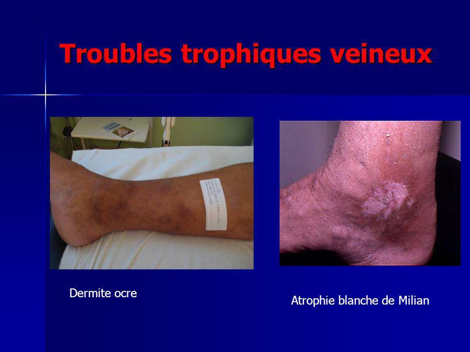 Troubles trophiques veineux Dermite ocre Atrophie blanche de Milian