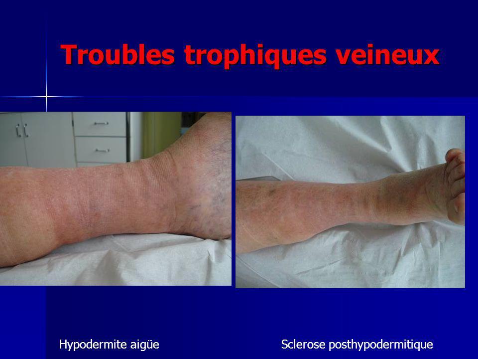 Troubles trophiques veineux Hypodermite aigüeSclerose posthypodermitique